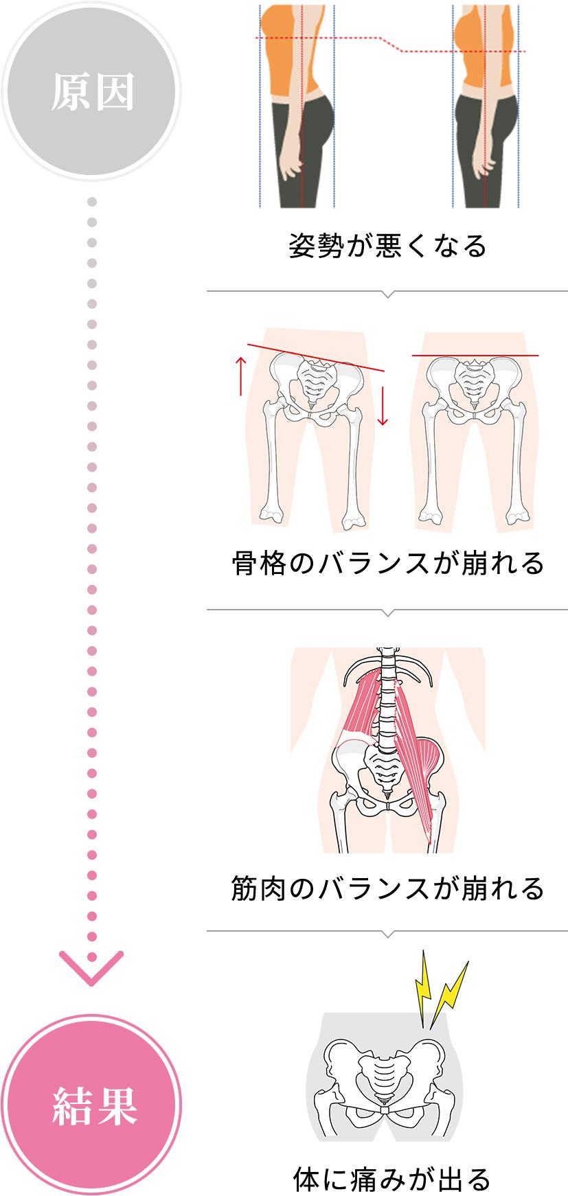 痛みや体の不調が起きる原因とは?