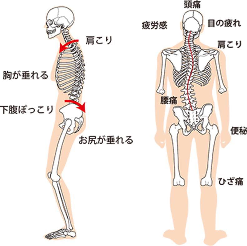 骨格や筋肉のバランスが崩れるとこんな痛みや不調が出ます!